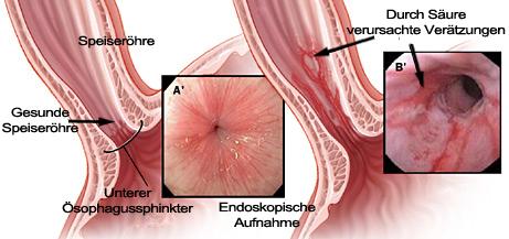 Speiseröhrenentzündung