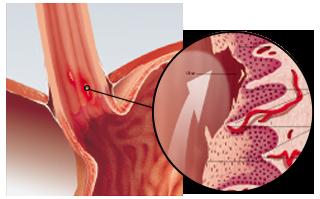 Verätzungen an der Speiseröhre